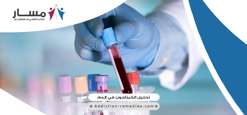 هل يبان الكبتاجون في تحليل الدم، كم يجلس الكبتاجون في البول، ما هو الكبتاجون المخدر، كم مدة مفعول الكبتاجون في الدم، ازالة مفعول الكبتاجون